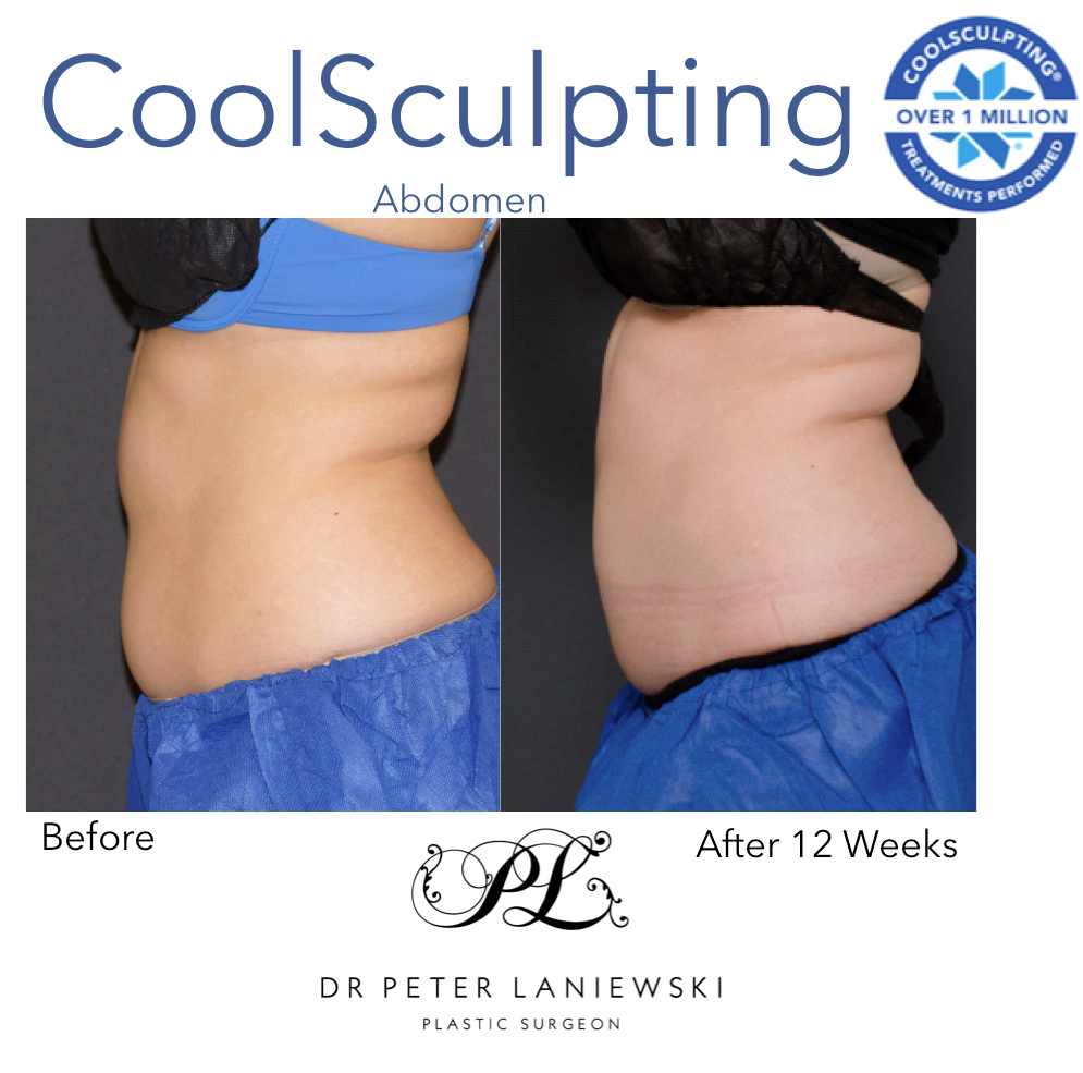 Ali-Doaa-12-Week-Post-Coolsculpting