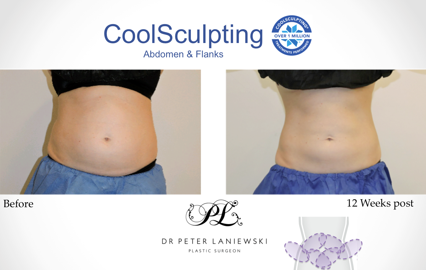Chelsea-E-Abdo-Flanks-Coolsculpting