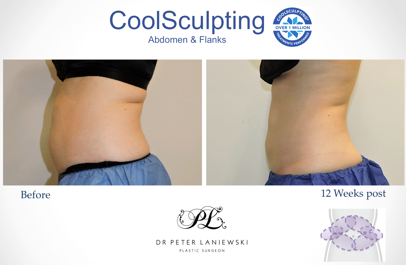 Chelsea-E-Abdo-flanks-Coolsculpting-161116