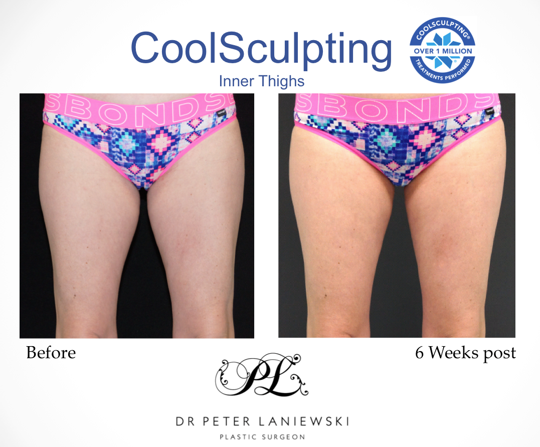 Lyn-Hannigan-Inner-Thighs-CoolSculpting