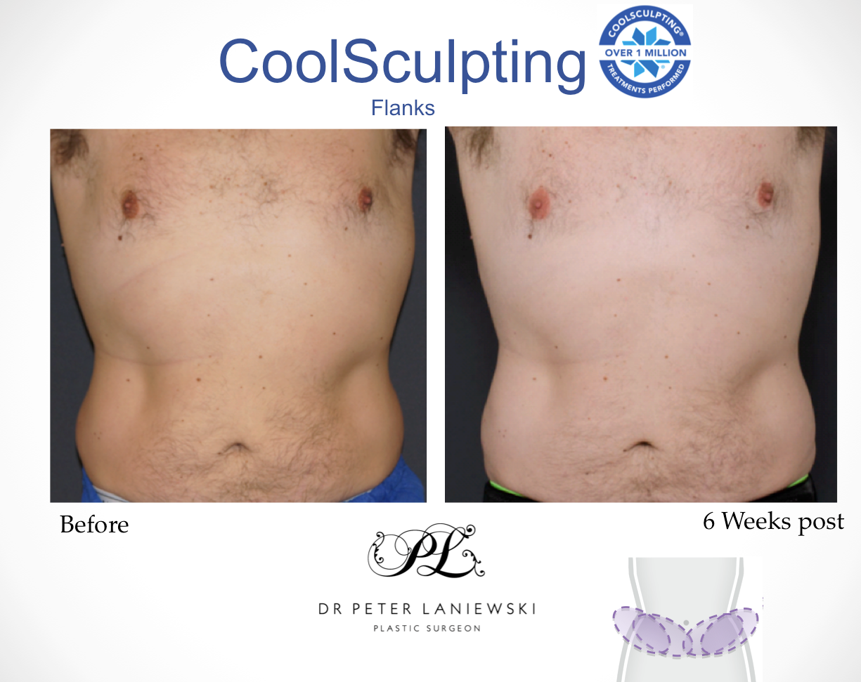 Micheal-goodall-Flanks-Coolsculpting-