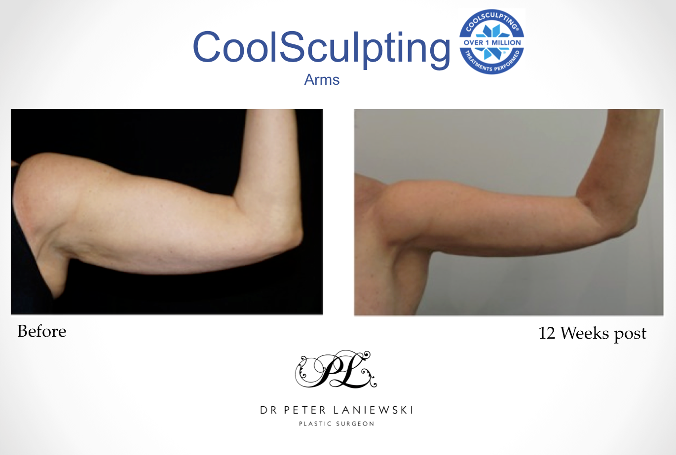 Wendy-Willings-Arms-CoolSculpting