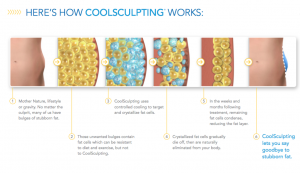 How CoolSculpting Works_preview